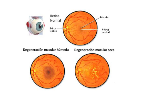 degeneracion-macular